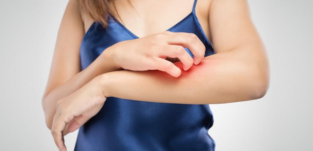 depilacion-laser-piel-atopica